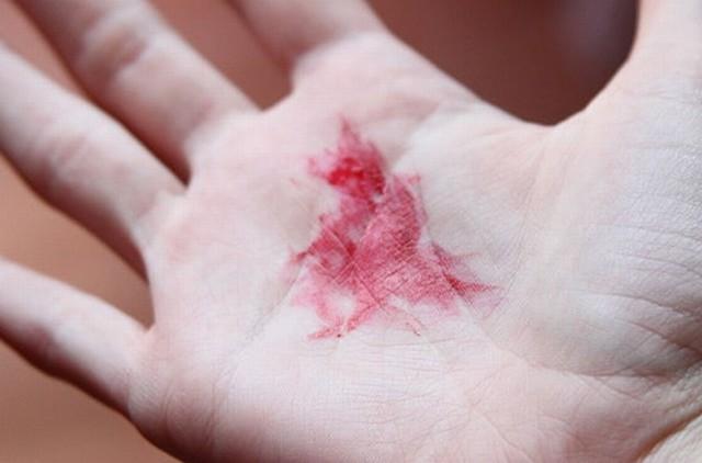Chảy máu bất thường trên cơ thể: dấu hiệu cảnh báo sức khỏe bạn không nên xem thường - Ảnh 4.