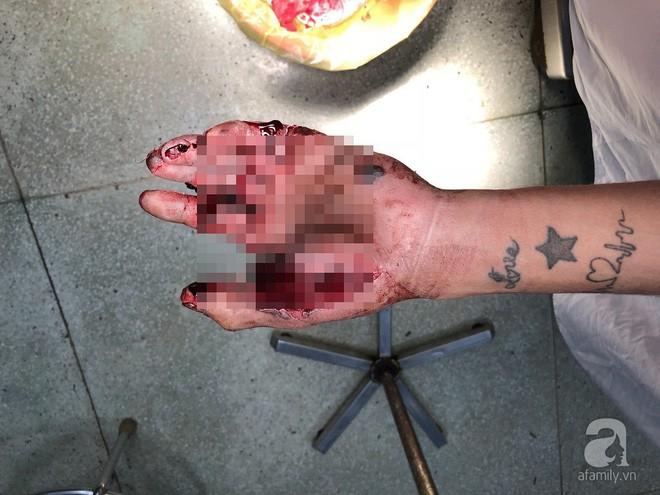 Đốt pháo sau cuộc nhậu tất niên, chàng trai 19 tuổi bị dập nát bàn tay nặng nề - ảnh 2