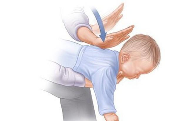 Bí mật về Heimlich - biện pháp cứu trẻ trong vài phút nguy kịch vì hóc dị vật - Ảnh 2.