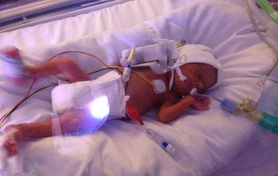 Sự hồi sinh kỳ lạ của bé gái 2 tuổi trước tử thần khiến mọi người sửng sốt