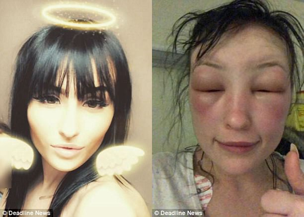 """Tự mình nhuộm tóc ở nhà, người phụ nữ """"tá hỏa phát hiện gương mặt biến dạng, thậm chí không thể mở mắt - Ảnh 4."""