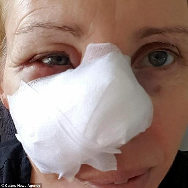 Không ai ngờ rằng vết bầm trên mặt này lại có thể gây chết người - Ảnh 3.