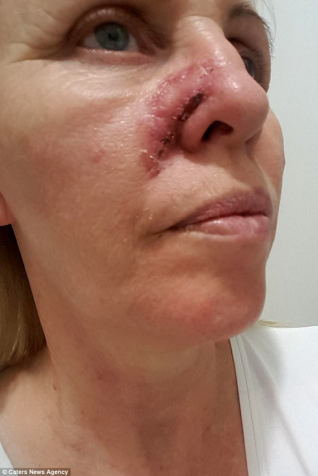 Không ai ngờ rằng vết bầm trên mặt này lại có thể gây chết người - Ảnh 4.