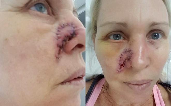 Không ai ngờ rằng vết bầm trên mặt này lại có thể gây chết người - Ảnh 1.