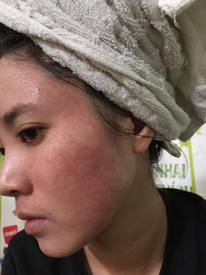 Nghe lời nhân viên spa chấm nám cho đẹp da, cô gái trẻ bị thui cháy loang lổ cả mặt - Ảnh 8.