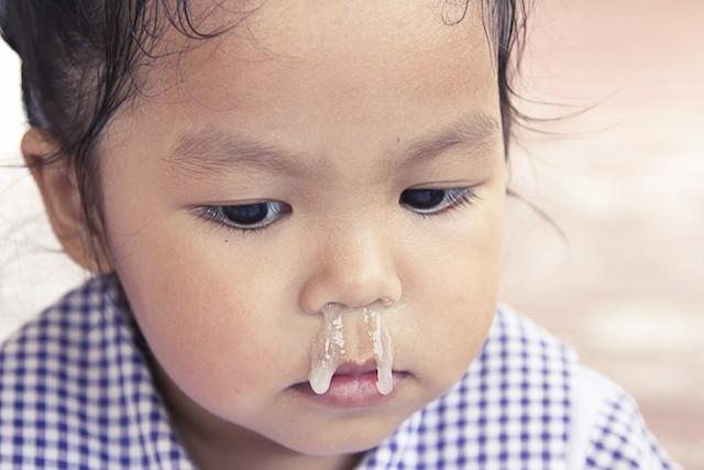 Các bác sĩ cảnh báo về cách chữa sổ mũi bằng tỏi ngâm nước muối sinh lý đang được các mẹ lan truyền - Ảnh 2.