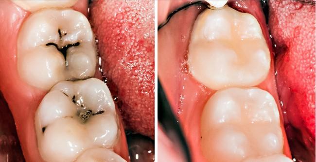 8 mẹo vặt hữu ích giúp bạn luôn nói không với bệnh sâu răng - Ảnh 6.