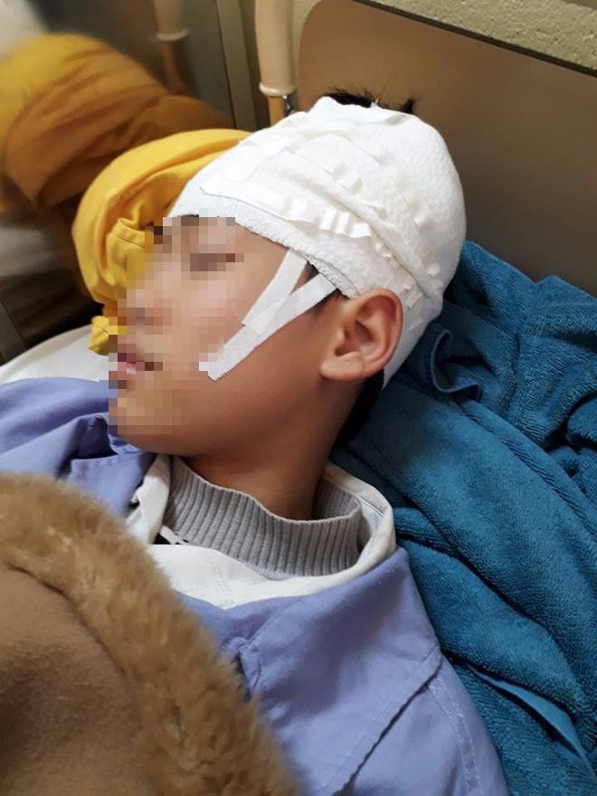 Quảng Ninh: Nam sinh lớp 9 nhập viện, nghi bị thầy giáo tát khiến tụ máu ở đầu - Ảnh 2.