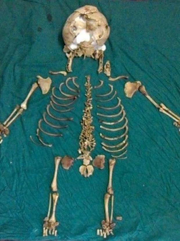 Hy hữu: Người mẹ mang hài cốt của đứa con trong bụng 36 năm mà không hề hay biết - Ảnh 2.