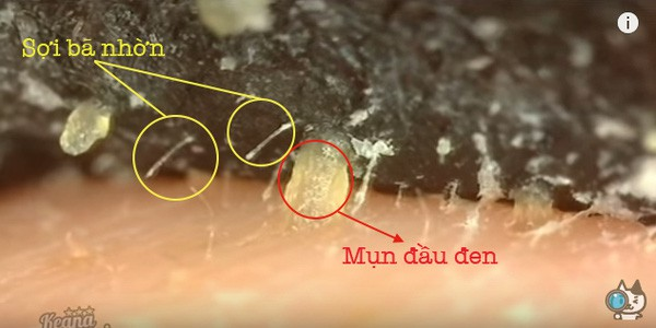 Không phải mẹo làm đẹp nào cũng tin được, điển hình là việc dùng Vaseline để lột mụn đầu đen - Ảnh 8.