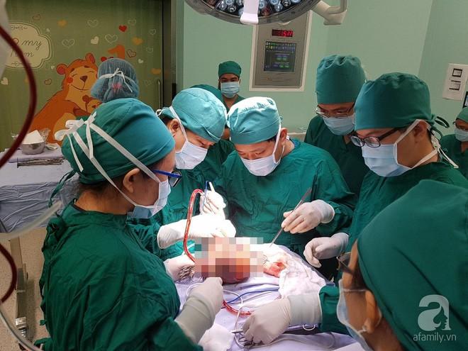 Thai phụ 19 tuổi ở Sài Gòn sinh bé gái mang khối u quái dị hình dạng như bào thai - ảnh 2