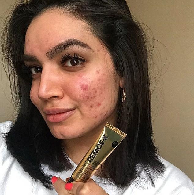 Một hãng mỹ phẩm đã từ chối cộng tác với một blogger làm đẹp chỉ vì... làn da cô có quá nhiều mụn - Ảnh 1.
