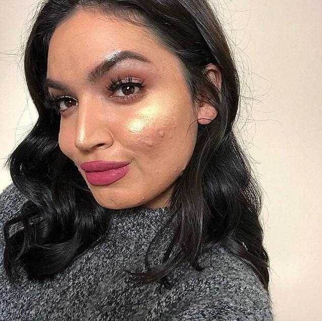 Một hãng mỹ phẩm đã từ chối cộng tác với một blogger làm đẹp chỉ vì... làn da cô có quá nhiều mụn - Ảnh 5.