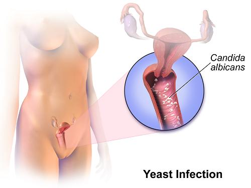 Những điều cần biết về bệnh nấm âm đạo: Không chỉ phụ nữ, nam giới cũng có thể bị mắc - Ảnh 2.