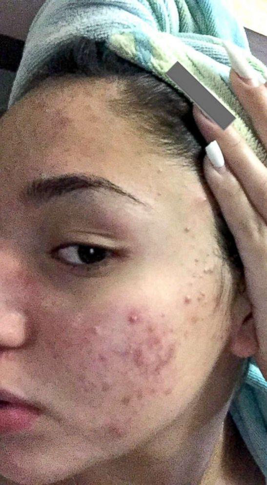 Mặt tan nát vì nhiều mụn, cô nàng này vẫn lấy lại làn da mịn màng không tì vết nhờ bí quyết chăm sóc da siêu rẻ, siêu dễ - Ảnh 2.