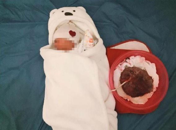 Tiến sĩ sản khoa cảnh báo nhiều nguy cơ tiềm ẩn khi sinh con theo phương pháp liên sinh - Ảnh 1.