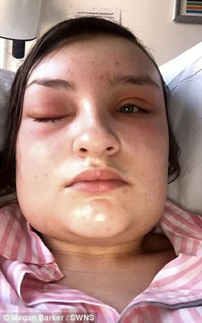 Đột nhiên phát hiện bị sụp một bên mí mắt, cô gái đinh ninh là do keo dán mi nhưng sự thực đáng sợ hơn nhiều - Ảnh 5.