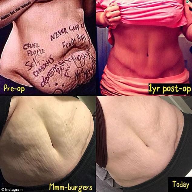 Vì những lời tố sống ảo, cô gái từng nổi tiếng vì giảm 70kg tăng cân trở lại nhưng đã nhận ra bài học quý giá cho mình - Ảnh 4.