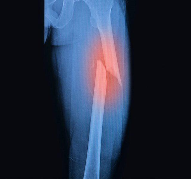 Không may bị gãy xương, bạn cần làm ngay điều này nếu không muốn gặp biến chứng nguy hiểm - Ảnh 1.