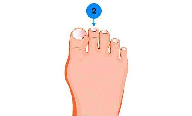 Soi ngay kích cỡ ngón chân để khám phá nhiều bí mật thú vị về tính cách của bản thân - Ảnh 2.