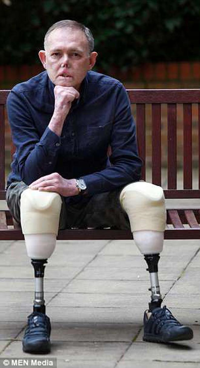 Chỉ vì một vết xước do chó cưng gây ra khi chơi đùa, người đàn ông cụt 2 chân, mất 6 ngón tay và biến dạng mặt - Ảnh 3.