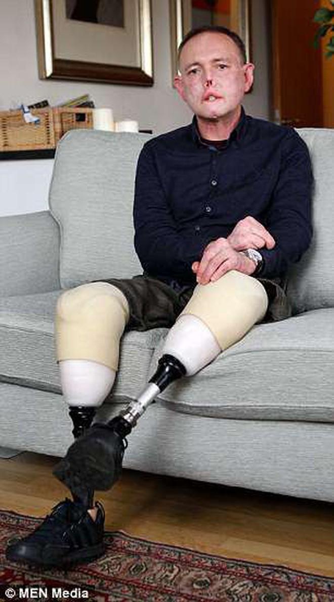 Chỉ vì một vết xước do chó cưng gây ra khi chơi đùa, người đàn ông cụt 2 chân, mất 6 ngón tay và biến dạng mặt - Ảnh 4.