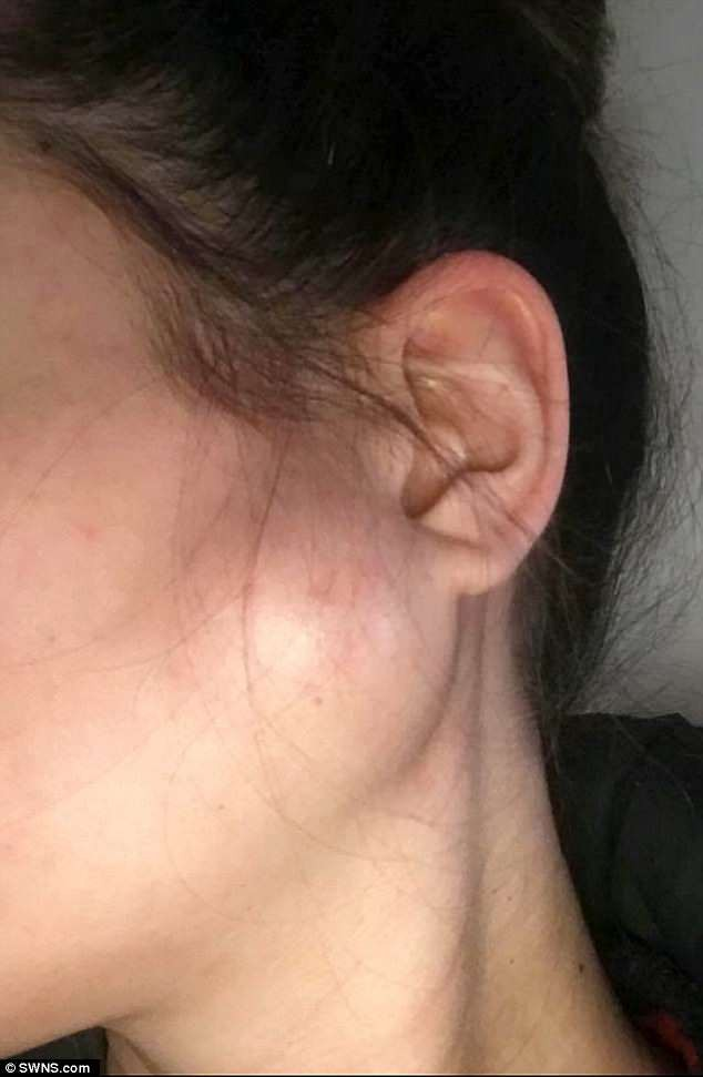 Phát hiện vết sưng nhỏ trên mặt trước khi sinh, người mẹ trẻ đâu ngờ sau 2 tuần lại trở thành khối u ác tính và cô mắc bệnh ung thư giai đoạn cuối - Ảnh 2.