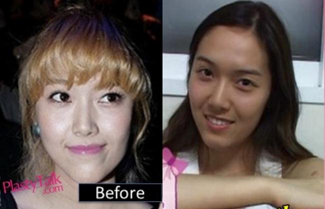 Sao Hàn bị tố dao kéo cùng lò: Diễn viên giống hệt Hoa hậu, nhưng nhóm gây sốc nhất lại lên đến tận 34 người - Ảnh 15.