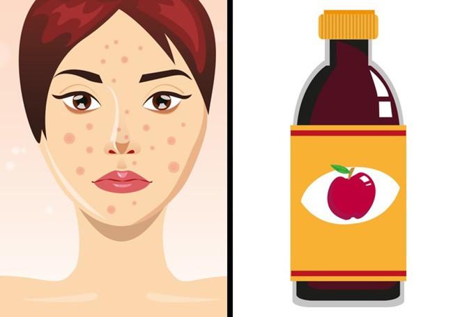 8 loại mặt nạ cực dễ tìm giúp chị em sở hữu làn da láng mịn mà không cần tốn tiền đi spa - Ảnh 5.