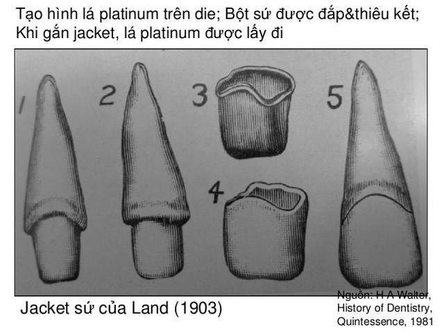 Sự thật ít người biết về mục đích ban đầu của răng sứ thẩm mỹ - Ảnh 2.