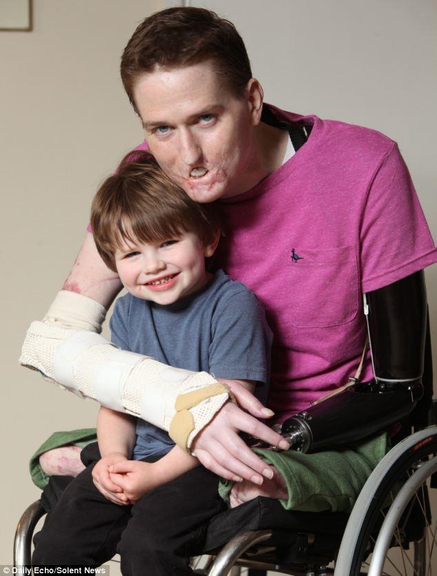 Tưởng chỉ bị cảm cúm thông thường, người đàn ông phải cắt bỏ chân tay và một phần gương mặt để giữ mạng sống - Ảnh 4.