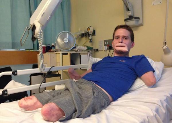 Tưởng chỉ bị cảm cúm thông thường, người đàn ông phải cắt bỏ chân tay và một phần gương mặt để giữ mạng sống - Ảnh 7.