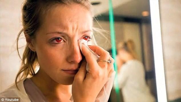 Bác sĩ mắt chia sẻ 4 điều bạn tuyệt đối không bao giờ được làm với kính áp tròng - Ảnh 5.