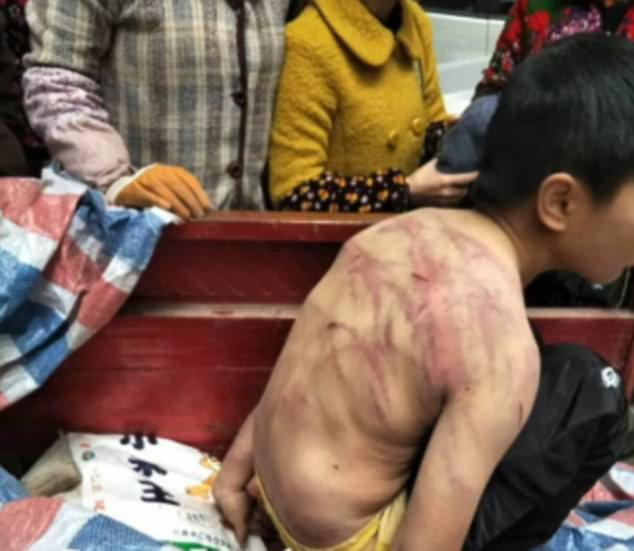 Bị bố mẹ đánh đập dã man, cậu bé mình chi chít vết roi, cởi trần vạ vật giữa trời âm độ - Ảnh 2.