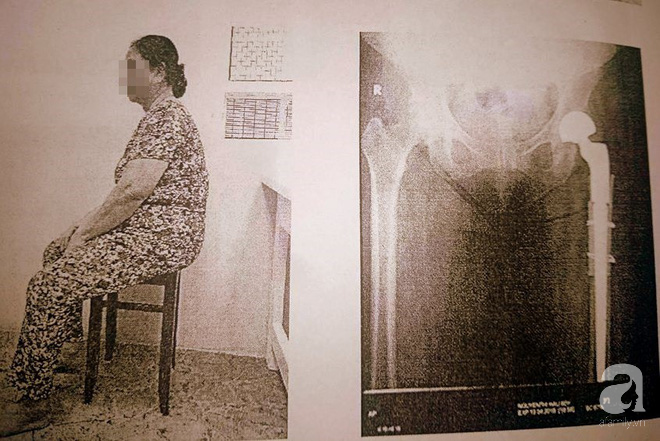 Bằng phương pháp này, bác sĩ Việt giúp người phụ nữ mang khối bướu ác tính ở xương đùi không phải tháo khớp - Ảnh 3.