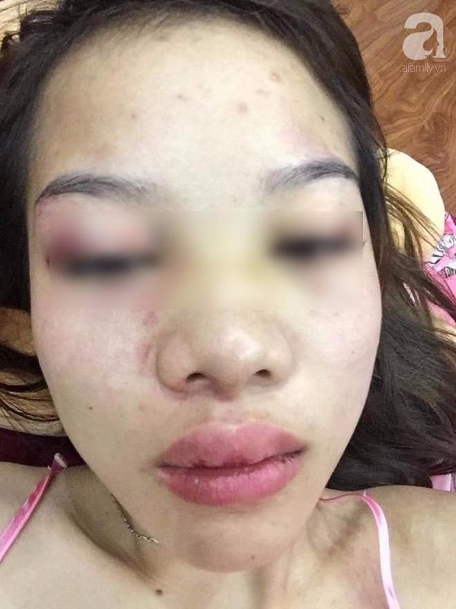 Cô gái bị bạn trai ngoại quốc đánh, tung clip nóng lên mạng: Tôi vì có tình cảm nên luôn chấp nhận những trận đánh, tôi chấp nhận vì tình yêu - Ảnh 3.