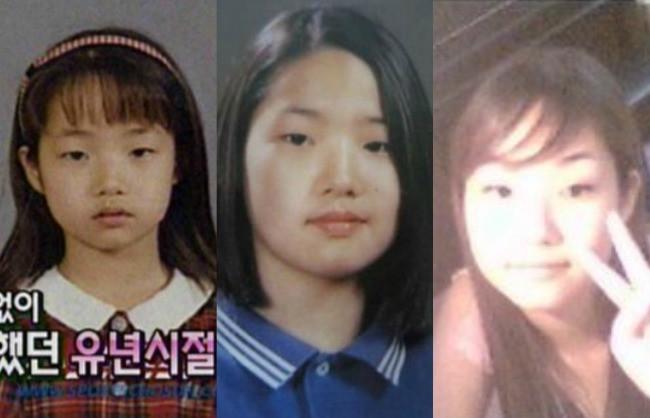 """Những ca phẫu thuật thành công của mỹ nhân Hàn: Đúng là không có gì là không thể, một bước """"vịt hóa thiên nga"""", lọt top gương mặt đẹp nhất thế giới - Ảnh 1."""