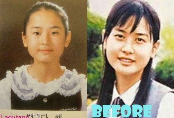 """Những ca phẫu thuật thành công của mỹ nhân Hàn: Đúng là không có gì là không thể, một bước """"vịt hóa thiên nga"""", lọt top gương mặt đẹp nhất thế giới - Ảnh 8."""
