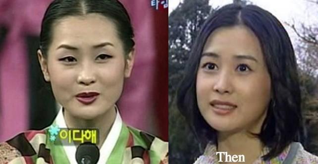 """Những ca phẫu thuật thành công của mỹ nhân Hàn: Đúng là không có gì là không thể, một bước """"vịt hóa thiên nga"""", lọt top gương mặt đẹp nhất thế giới - Ảnh 9."""