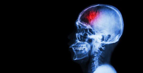 Sơ cứu nhanh chóng khi bị đập đầu xuống đất, tránh biến chứng chấn thương sọ não cực nguy hiểm - Ảnh 4.
