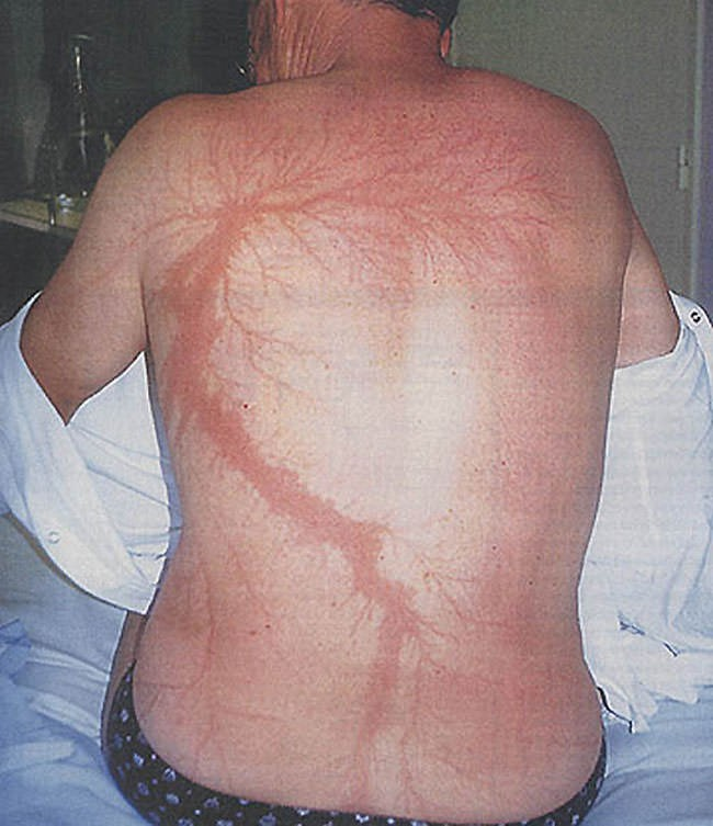 35 năm bị sét đánh 7 lần không mất mạng, người đàn ông này lại chết vì lý do không ai ngờ - Ảnh 2.