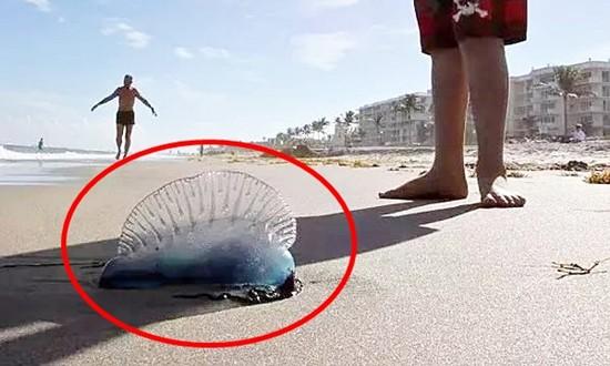 Nằm lòng cách xử lý khi bị sứa biển cắn – Bí quyết xử lý đúng, kịp thời bất cứ ai cũng cần trau dồi vào mùa đi biển - Ảnh 5.