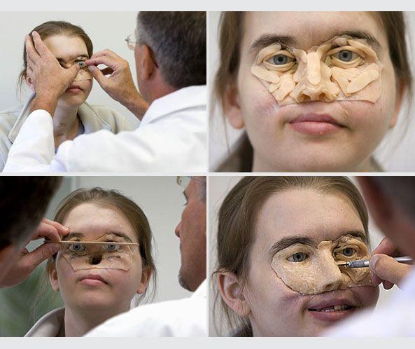 Mất nửa mặt vì tai nạn, giờ đây cô đã có một lý do tuyệt vời để tự tin tháo chiếc mặt nạ đã gắn liền hơn 11 năm trời - Ảnh 6.