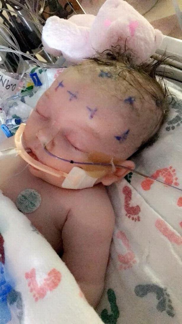Mẹ bế con gái 7 tuần tuổi đi xem bố đánh bóng chày không ngờ chỉ sau một cú ném bóng, con nhập viện trong nguy kịch - Ảnh 2.