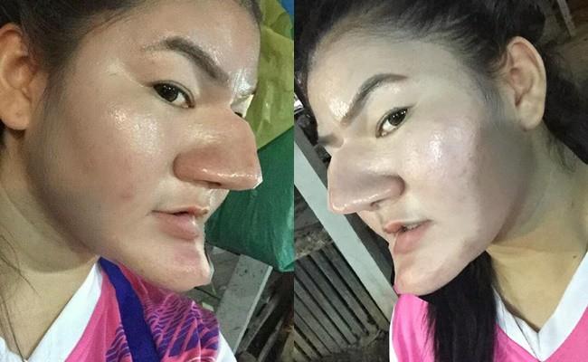 Nhìn chiếc mũi và cằm như phù thủy, ai cũng tưởng cô ấy phẫu thuật thẩm mỹ hỏng nhưng sự thật phía sau rất bất ngờ - Ảnh 1.