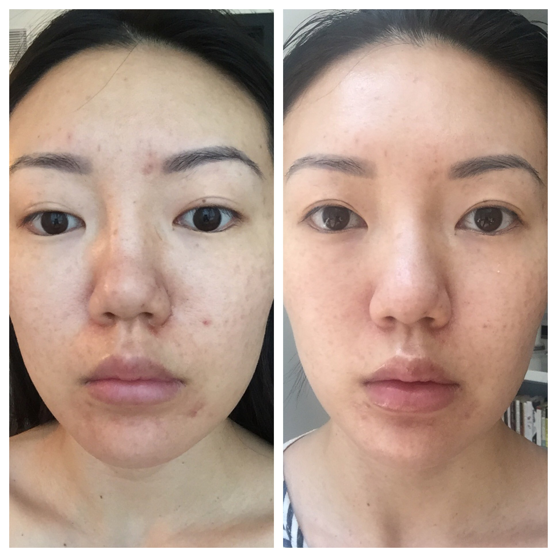 Nhờ loại dụng cụ đơn giản, những vết rạn da của cô gái này đã biến mất chỉ sau 2 tuần sử dụng - Ảnh 8.