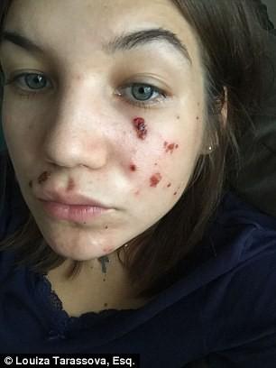 Lột da bằng hóa chất, người phụ nữ đau đớn mang về một gương mặt đầy vết bỏng rộp và nhiễm trùng đáng sợ - Ảnh 3.