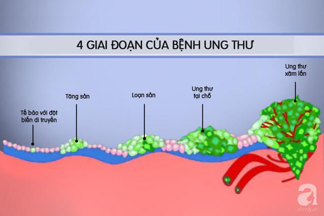 Clip cho thấy ung thư di căn phát triển như thế nào và phá hủy cơ thể người bệnh ra sao - Ảnh 2.