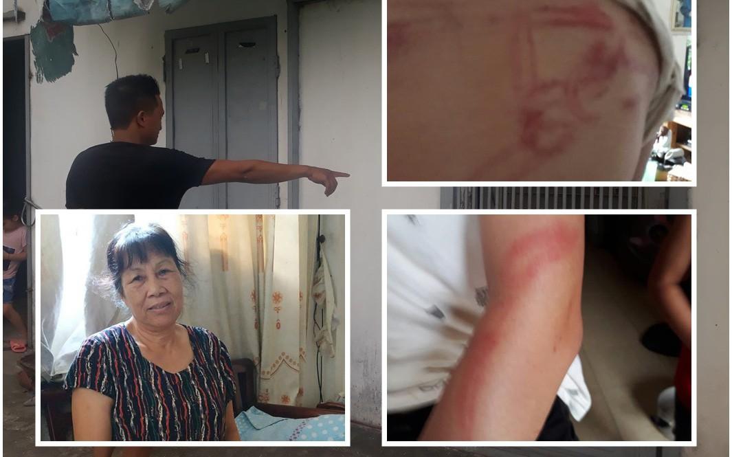 Chủ tịch thành phố Hà Nội yêu cầu làm rõ vụ 2 bé gái tố bị bố đẻ bạo hành dã man