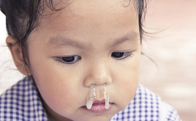 Các mẹ lại thi nhau bắt bệnh cho con qua màu nước mũi, chuyên gia cảnh báo Đừng tự phong mình là bác sĩ! - Ảnh 2.